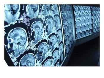 Интенсивная терапия тяжелой черепно-мозговой травмы
