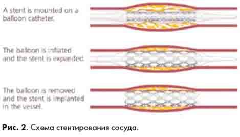 схема стентирования сосуда