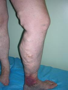 Варикозная болезнь в стадии декомпенсации