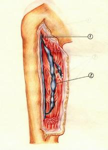 Мышечно-венозные синусы голени