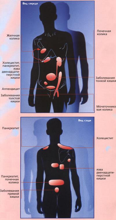 Абдоминальная боль: дифференциальная диагностика, возможные лечебные подходы