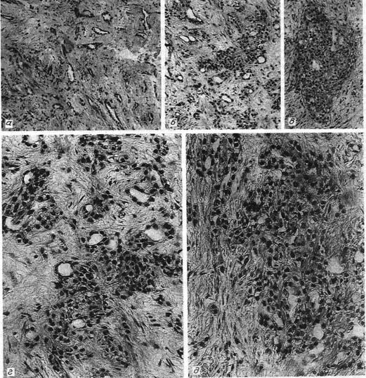 Злокачественная мезотелиома перикарда