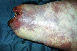 Клостридиальная гнойная инфекция глубоких тканей