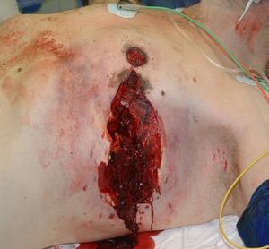 Травмы и ранения груди