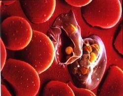Малярийный плазмодий в эритроцитах человека