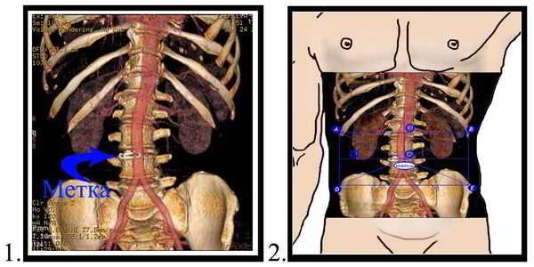 Спиральная компьютерная томография. Рентгеноконтрастная метка. Координатная система