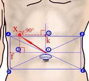 Проецирование координатной системы на брюшную стенку пациента и определение точек проведения инструментальных портов и зоны максимального хирургического интереса.