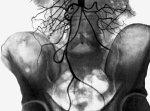 Синдром Лериша. Аортограмма при высокой окклюзии брюшной части аорты.